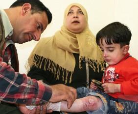 five-year-old Abdulrahman, an Iraqi boy diagnosed with congenital epidermolysis bullosa