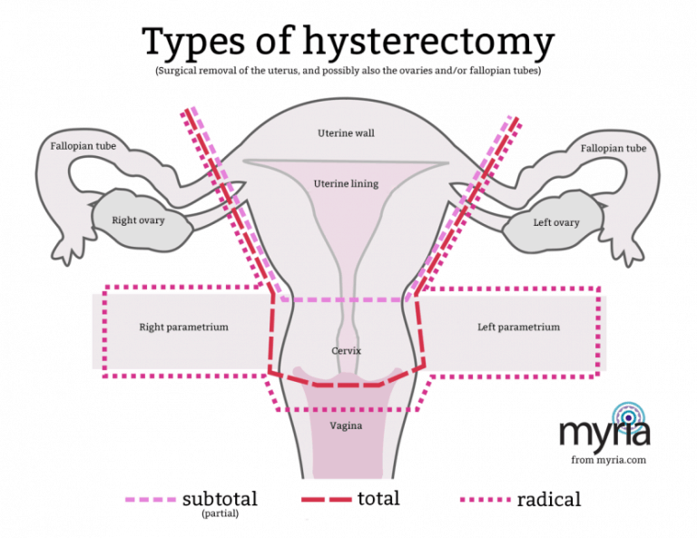 what is a hysterectomy? myria diagram after hysterectomy diagram after hysterectomy #3